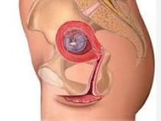 功能性子宫出血