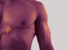 男性乳房发育症