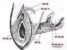 细菌性阴道病(BV)