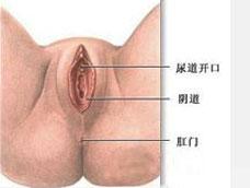 滴虫性尿道炎