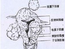 浆膜下肌瘤