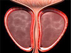 前列腺结石